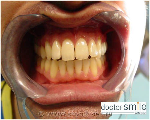 Процесс лазерного отбеливания зубов фото до отбеливания.