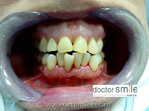 Отбеливание зубов с помощью ламп